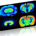 Mass Spectrometry imaging in Brain
