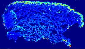 ICPMS coupled with Mass spectrometry imaging