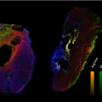 Immuno oncology can be understand easier by Mass spectrometry Imaging