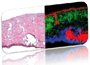 Mass spectrometry Imaging skin tissue compared to histological tissue