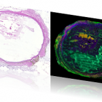 Eye mass spectrometry imaging compared to a histological image